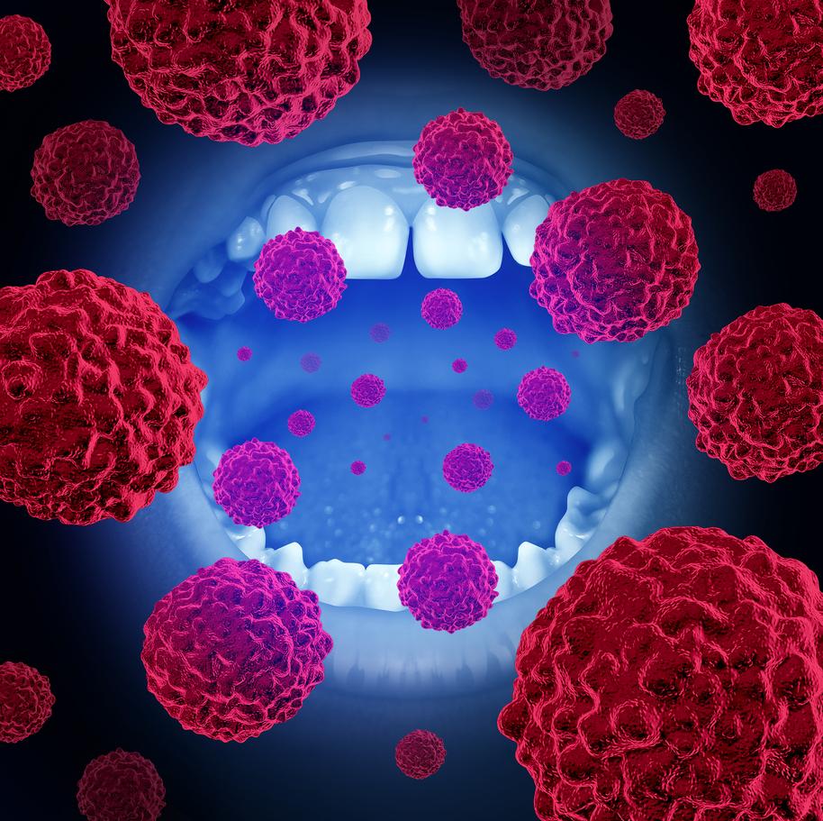 Periodontal Disease Bacteria Linked to Alzheimer's Disease