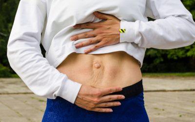 Diastasis recti abdominis in men and women